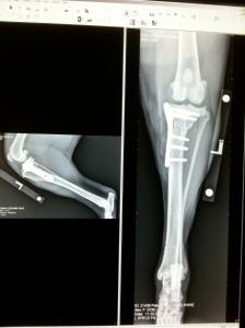 Annie's bionic leg